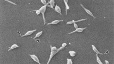 Mycoplasma Pneumoniae and Other Mycoplasmas