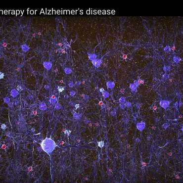 Alzheimers – Replacing the Missing Gamma Frequency